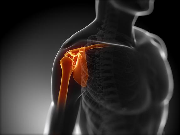 sholder pain